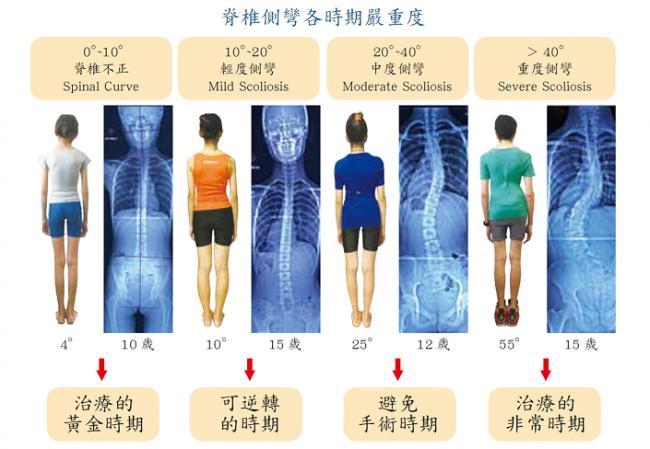 脊椎側彎各時期的延重程度案例