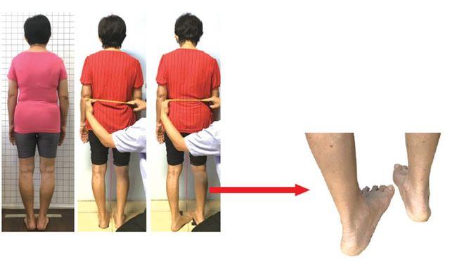 膝蓋退化性關節炎