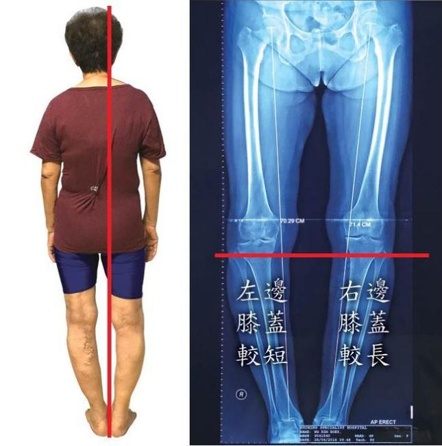 膝蓋外翻個案
