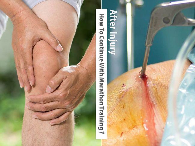 膝蓋傷害治療與復健