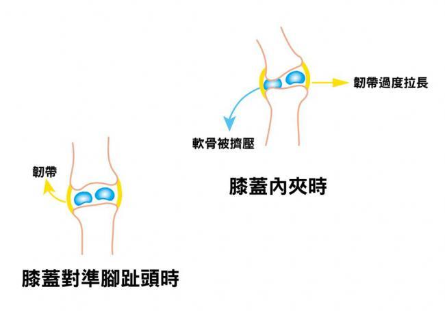 膝蓋內夾跟膝蓋對準腳趾頭