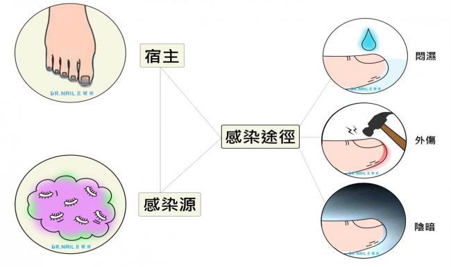 灰指甲感染途徑