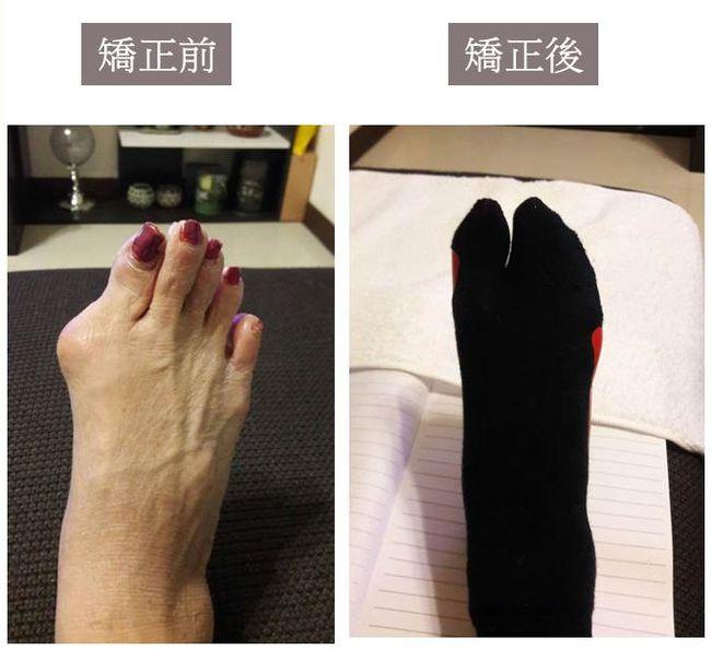 拇指外翻矯正輔具矯正襪