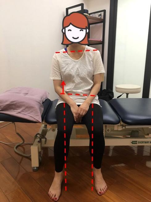 右肩低右邊骨盆高右膝向內偏