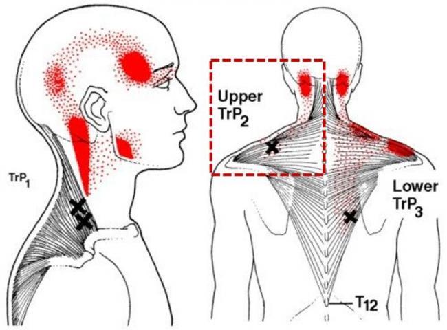 上斜方肌上的激痛點以及常見的疼痛散布範圍