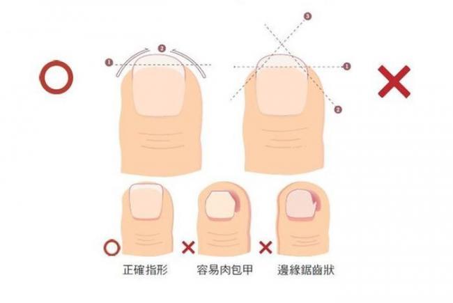 修剪指甲的正確方式
