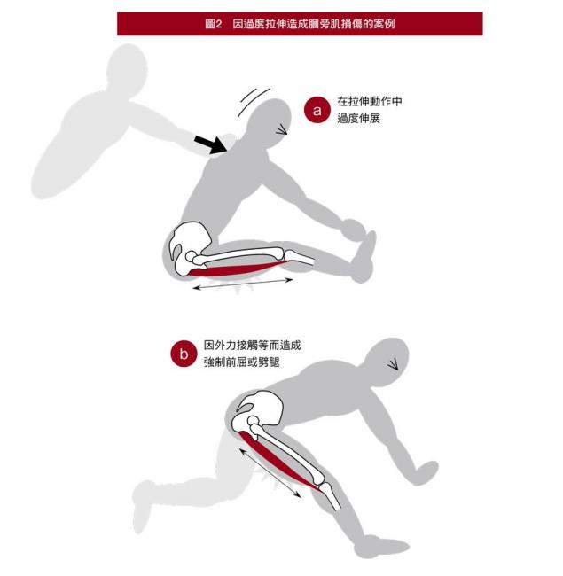 因過度拉伸造成膕膀肌損傷