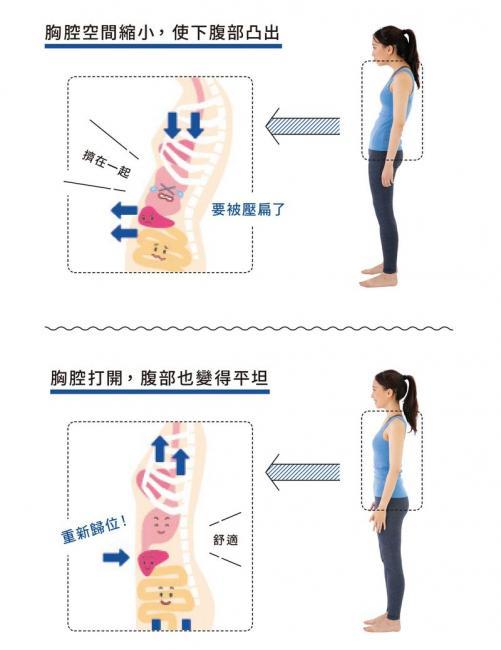 胸腔空間導致下腹凸出