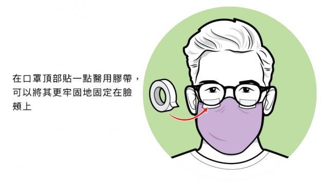 改善口罩貼合度的方法2:透氣膠帶