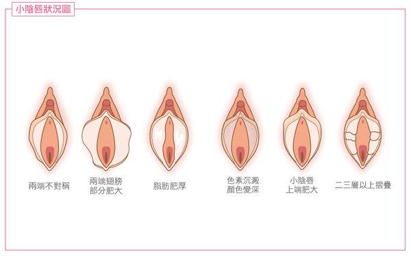 常見的小陰唇狀況
