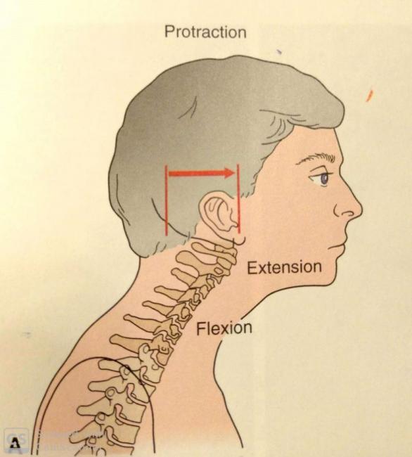頭前傾姿勢(forward head posture),又稱烏龜脖子