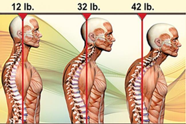 頭前傾位置與頸椎壓力的關係