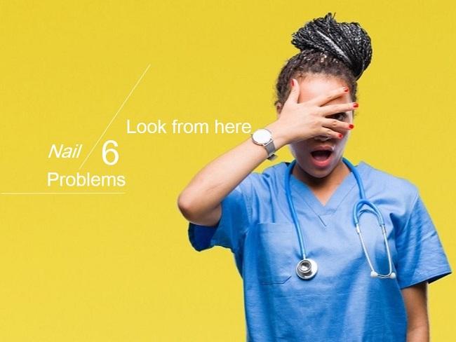 6個常見的指甲問題看出健康