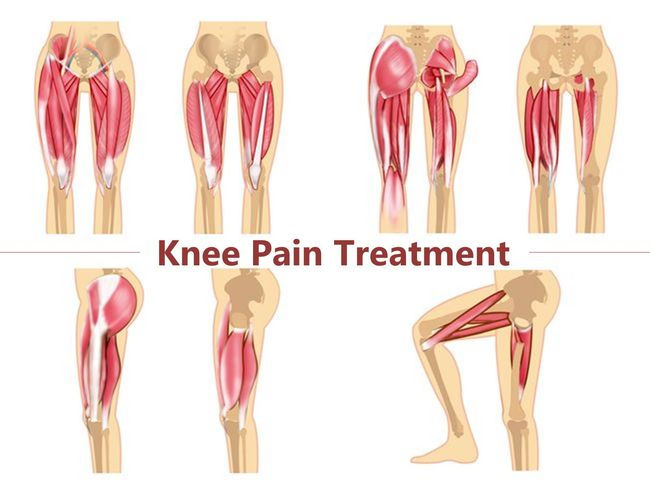 緩解膝蓋變形疼痛