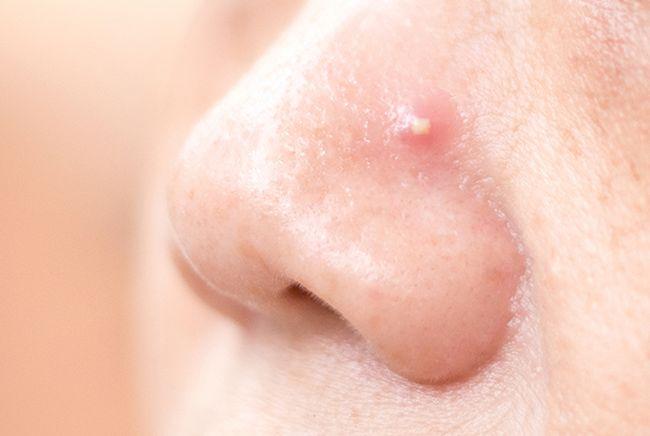 狂補高蛋白可能讓臉上爆痘痘