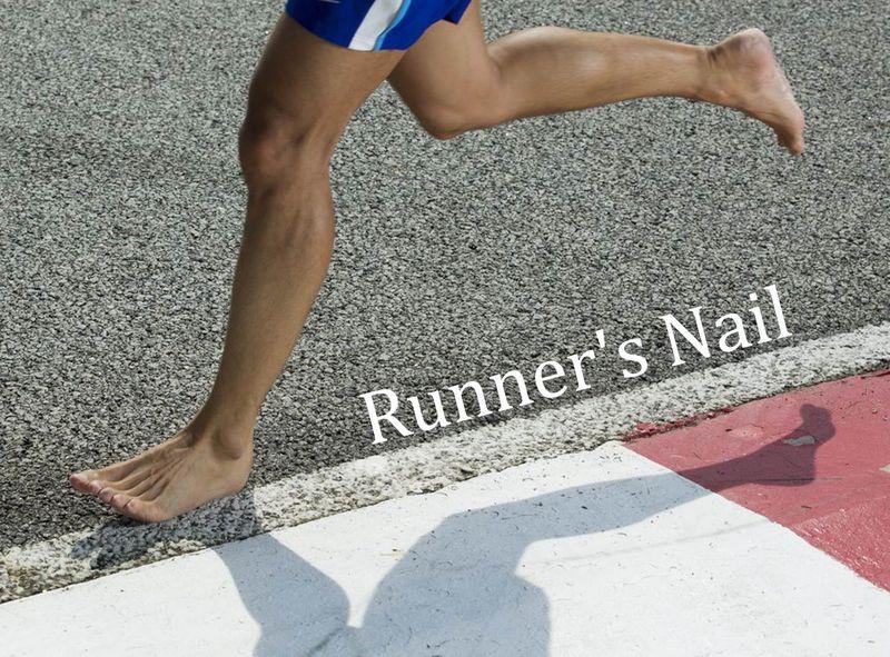 跑者如何保養腳指甲