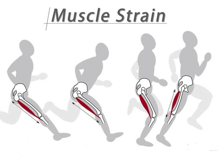 大腿後側膕旁肌拉傷的原因