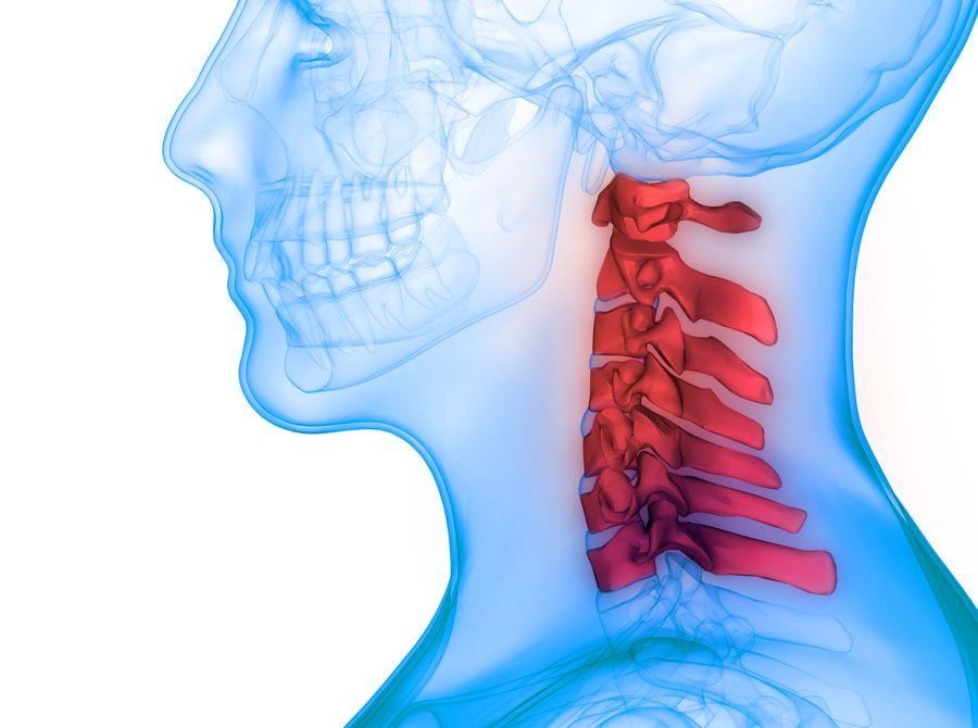 改善頸椎間盤突出的 3 大類運動 8 個招式
